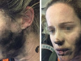 woman badly burned when her HEADPHONES exploded