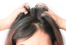 dandruff cure tips by sabitha zawariya