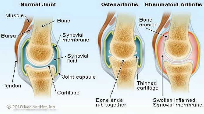 symptoms and treatment for arthritis