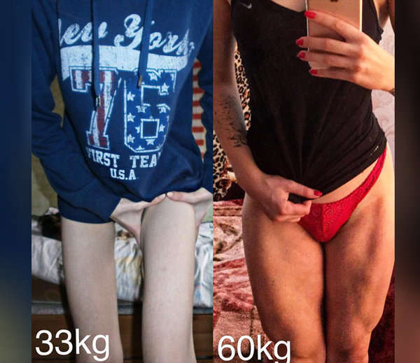 from anorexic to gym trainer