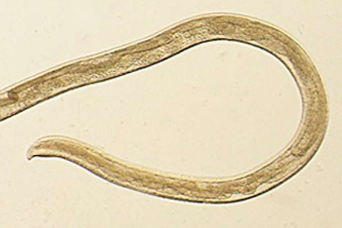 14 worms pulled from woman eye