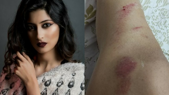 model akarshi attacked in indore