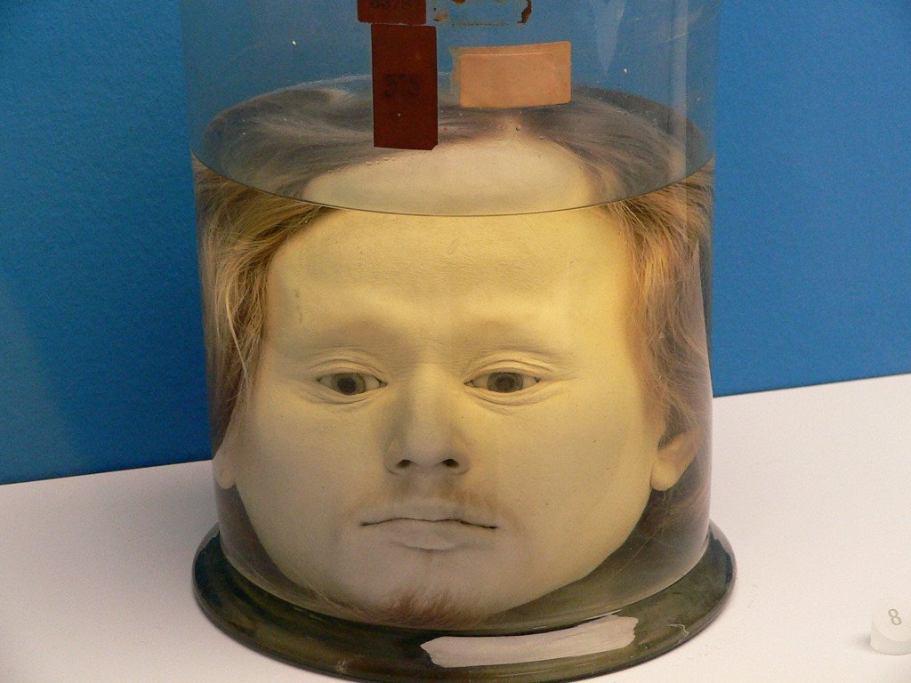 This Human Head Has Been Preserved At A University Since 1841