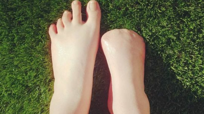 woman losed toeas after fish pedicure