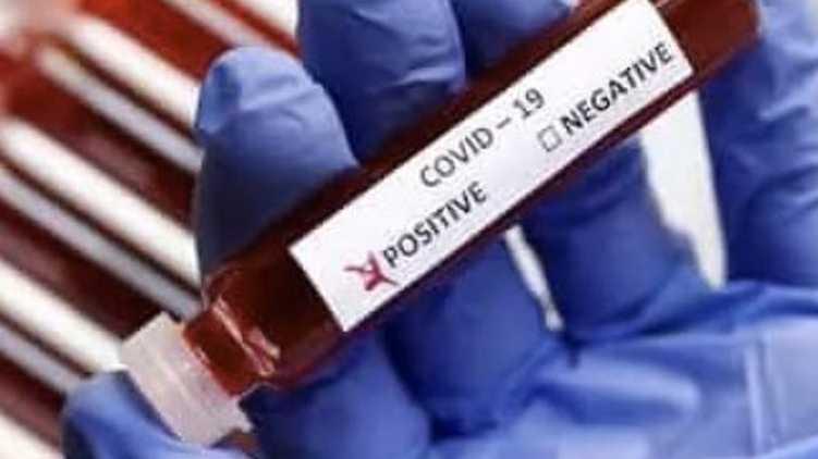 covid19, coronavirus, kozhikode