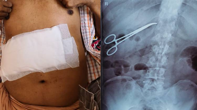 surgical instrument was forgotten in patients body