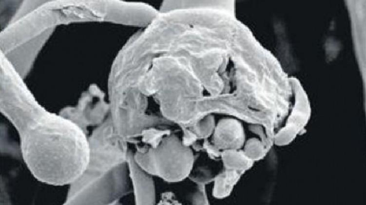 black fungus death kerala