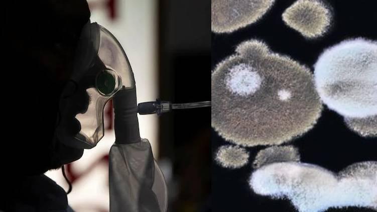 cm confirms black fungus presence in kerala