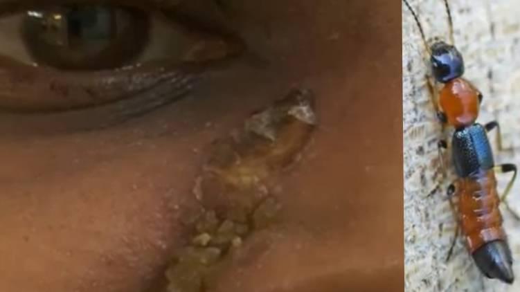 kakkanad blister beetle causes skin problem