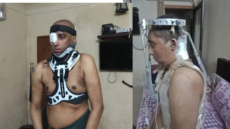man defeated black fungus
