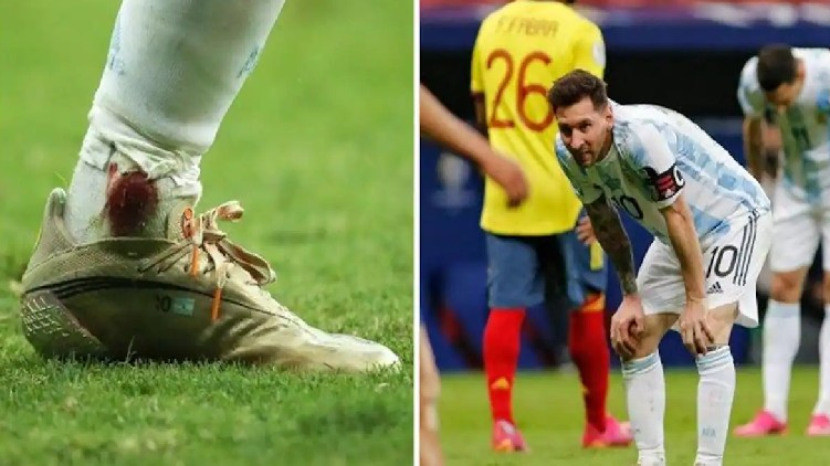 Messi Bleeding Ankle Colombia