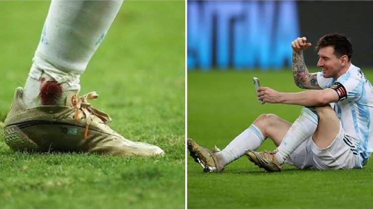 messi Copa final injury'