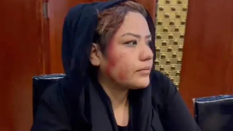 Afghan woman beaten Taliban